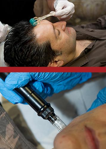 Microneedling and Dermaroller Treatments